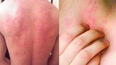Photo of এলার্জি Allergy কেন হয় ? প্রতিকার ও প্রতিরোধের উপায়!